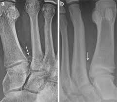 Os Intermetatarseum (Midfoot Pain)